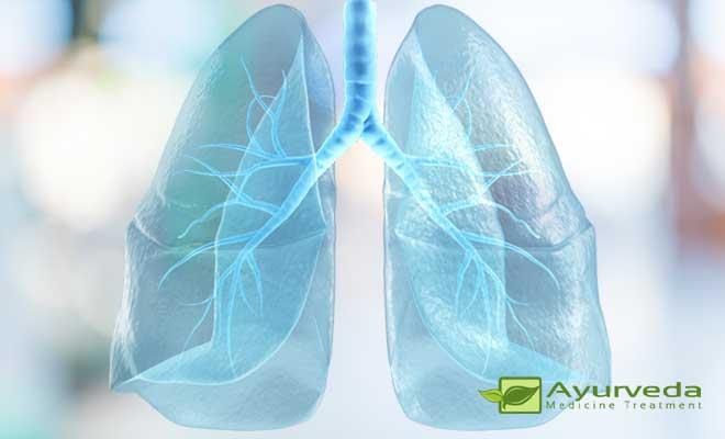 Bronchial-Asthma