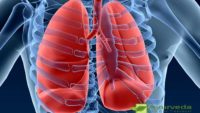 "Bronchitis ""inflammation of mucous membranes bronchi in lungs"""
