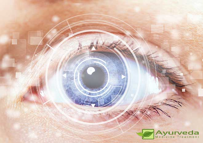 Myopia